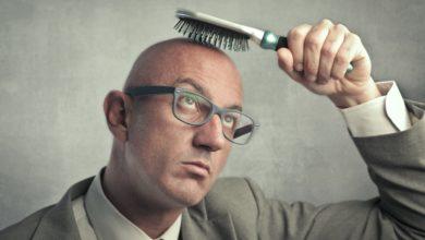 Photo of Советы для предотвращения облысения у мужчин