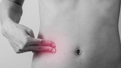 Photo of Аппендицит. Симптомы и причины