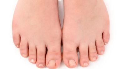 Photo of Паронихия – инфекция вокруг ногтя