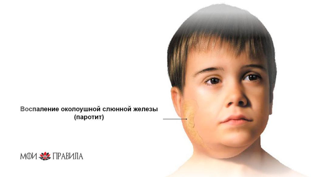 Воспаление околоушной слюнной железы (паротит)