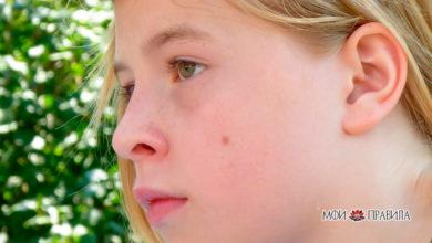Photo of Значение родинки на правой и левой щеке